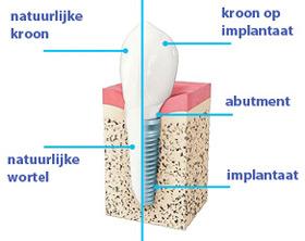 Wat-zijn-implantaten-tanden-Tandarts-Hongarije-Boedapest-Andras-Schandl-TopTanden-IP