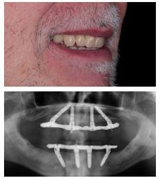 all-on-4-hongarije-vast-prothese-op-implantaten-ervaringen-en-kosten-hongarije-boedapest-toptanden-na-1A