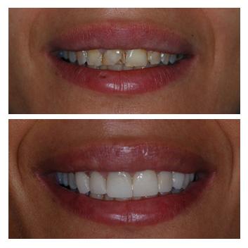facings-veneers-ervaringen-voor-en-na-foto-tandarts-hongarije-boedapest-01