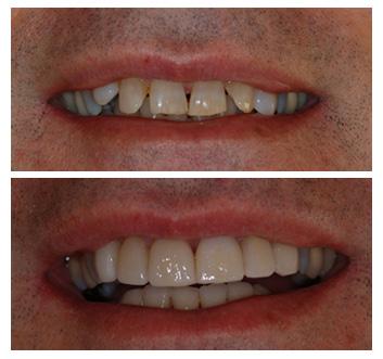 facings-veneers-ervaringen-voor-en-na-foto-tandarts-hongarije-boedapest-02