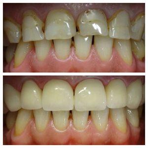 facings veneers tanden tandarts hongarije boedapest