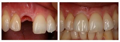 implantaten tanden kosten prijs evaringen hongarije boedapest andras schandl toptanden