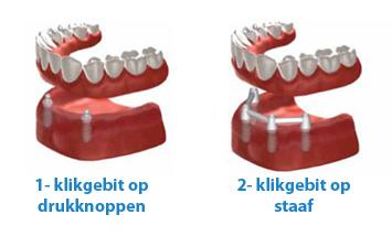klikgebit-klikprothese-stegprothese-op-staaf-klikgebit-met-drukknoppen-op-2-implantaten-tandarts-mondzorg-hongarije-boedapest-toptanden-04