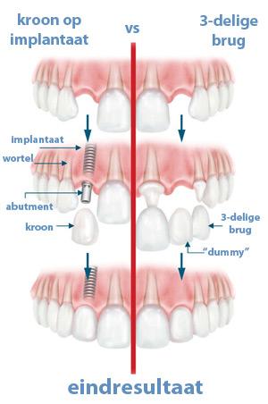 kroon op implantaat versus 3-delige brug op naastliggende tanden Toptanden Tandarts Hongarije Boedapest Bpg