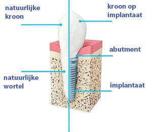 tandimplantaat-versus-natuurlijke-tand-Tandarts-Hongarije-Boedapest-Andras-Schandl-TopTanden