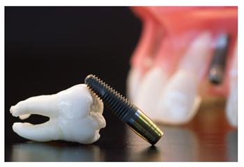 Implantaat-goedkope-tandarts-hongarije-budapest-Andras-Schandl-Toptanden