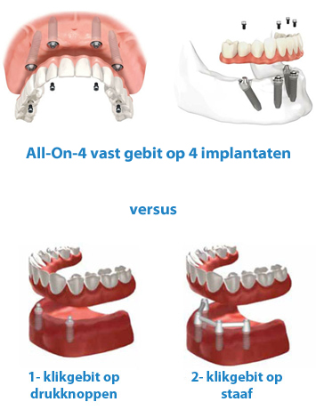 all on 4 vast gebit op implantaten versus klikgebit klikprothese hongarije budapest toptanden