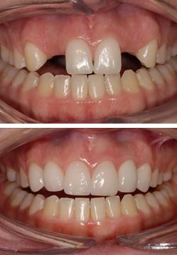 implantaat tand bij missen van 2 of meer tanden tandarts hongarije boedapest toptanden