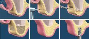 sinuslift-operatie-botopbouw-implantaat-tandarts-boedapest-hongarije-toptanden-300x133