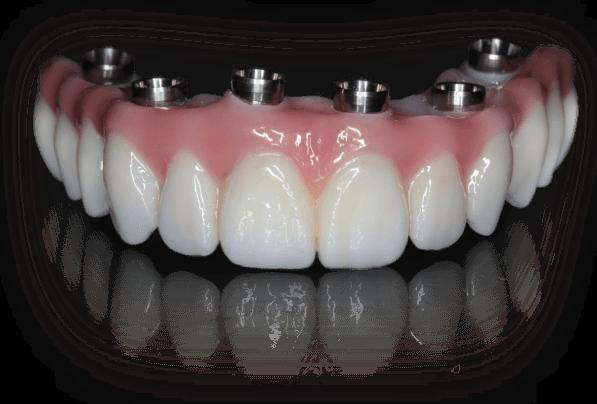 All on 6 vast gebit op implantaten. Tandzorg implaantaat prijs bj Toptanden tandarts mondzorg hongarije Boedapest