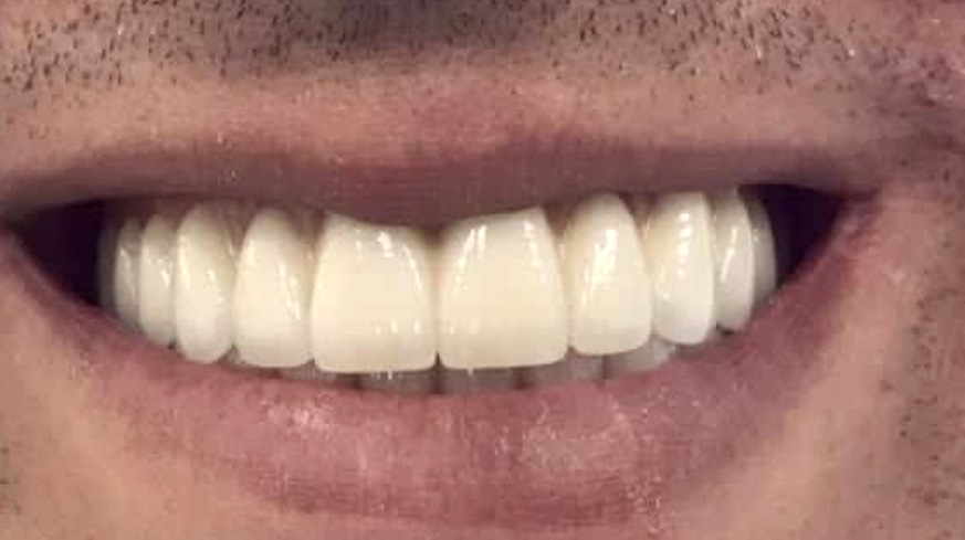 all-on-6 zirkonium vast gebit op tandimplantaten toptanden mondzorg hongarije nafoto