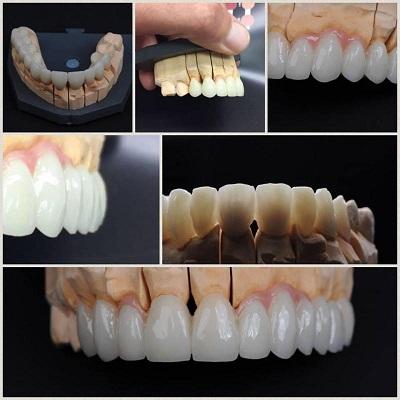 zirkonium kronen tanden kiezen toptanden boedapest mondzorg hongarije