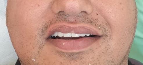 zirkonium kronen toptanden dental dr andras schandl